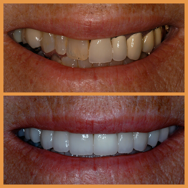 Before and after the dentition of an anonymous patient 1