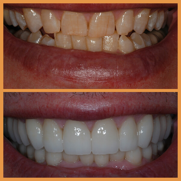 Before and after the dentition of an anonymous patient 2
