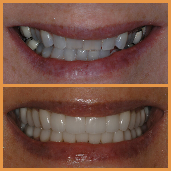 Before and after the dentition of an anonymous patient 3