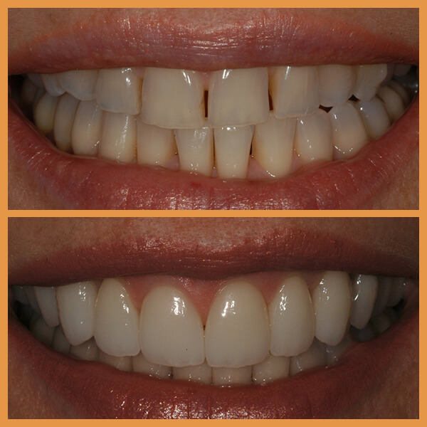 Before and after the dentition of an anonymous patient 4