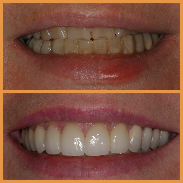 Before and after the dentition of an anonymous patient 5