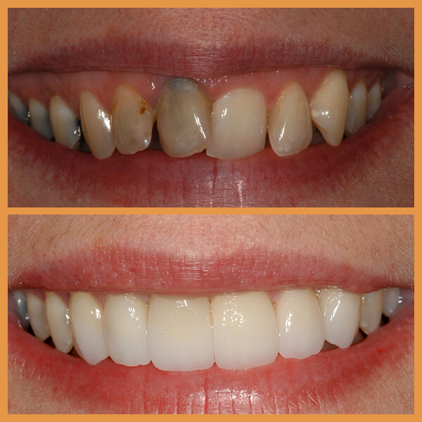 Before and after the dentition of an anonymous patient 6