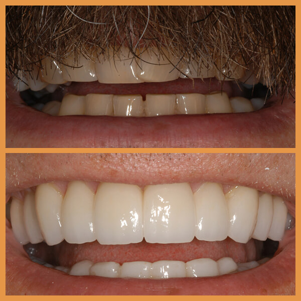 Before and after the dentition of an anonymous patient 7