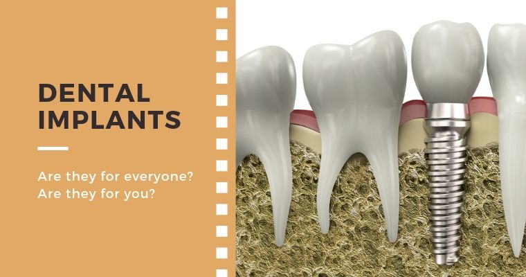 Dental Implants. Are they for everyone? Are they for you?